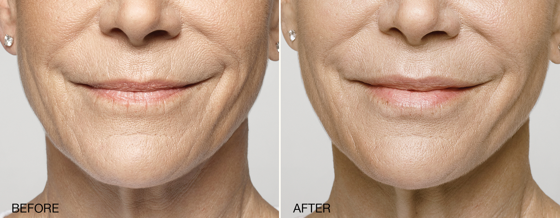 Restylane Silk Before and After | Restylane Mercer County