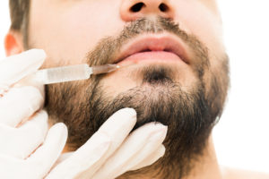 men-get-lip-injections-kessel-dermatology