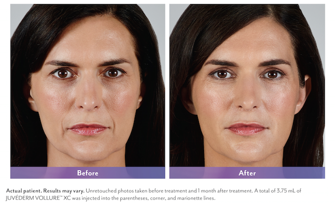Juvederm Vollure XC Before and After | Juvederm Hamilton NJ