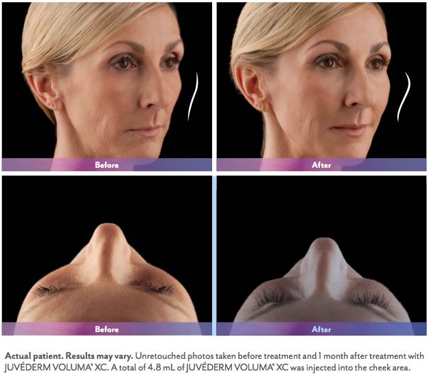 Juvederm Voluma XC Before and After | Juvederm Hamilton NJ