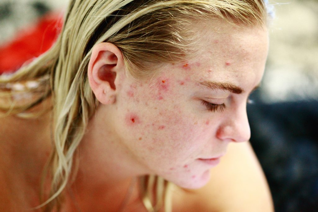 best dermatologist in NJ-area for acne