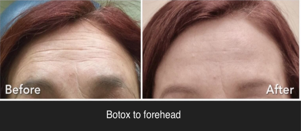 Botox Providers in NJ