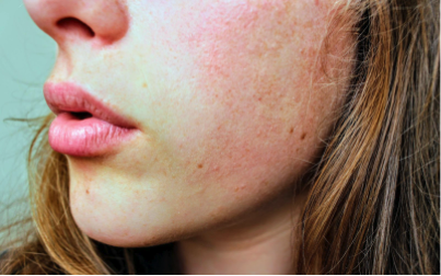what causes rosacea flare ups